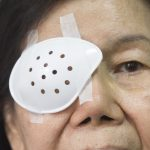 50957099 - eye shield covering after cataract surgery.